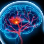 О симптомах инсульта и первой помощи